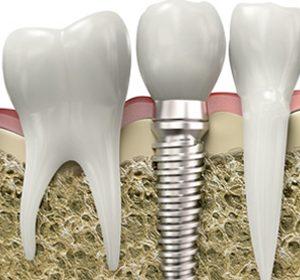 8 preguntas sobre los implantes dentales que seguro te has hecho alguna vez