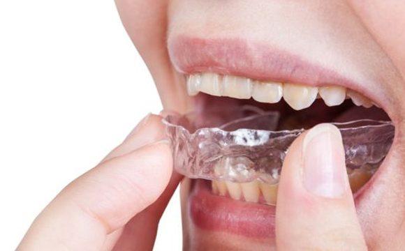 ¿Aprietas los dientes al dormir? Entonces sufres bruxismo