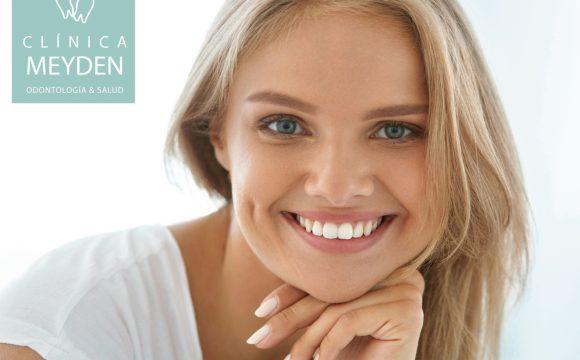 Sorteo de una Higiene Dental + Kit de Limpieza