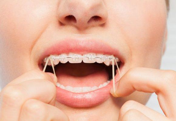 La ortodoncia no es solo una sonrisa bonita